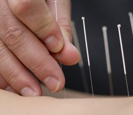 Devenir Acupuncteur